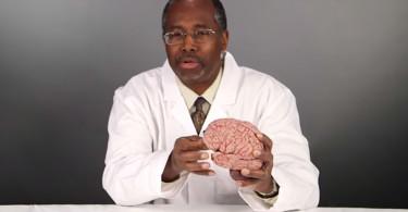 ben_carson_brain